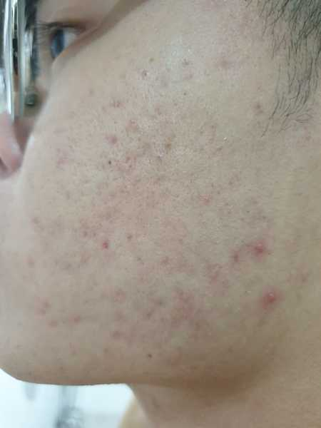 Pimple Reduced After Few Sessions at Indulgence Beauty