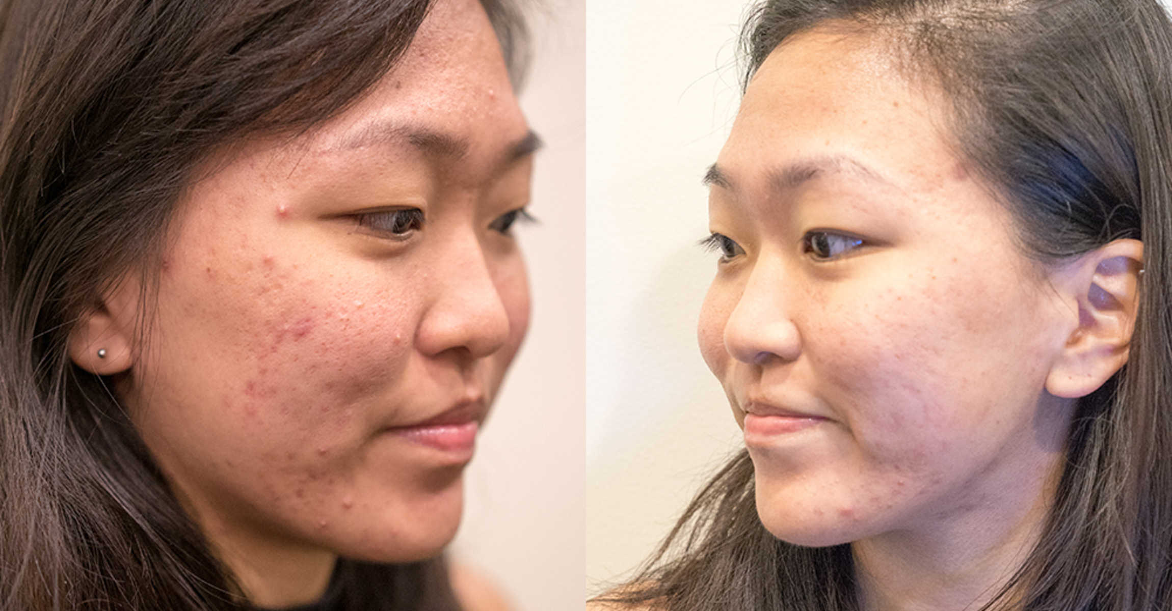 This Facial Can Reduce Pimples Naturally... WITHOUT Extractions!