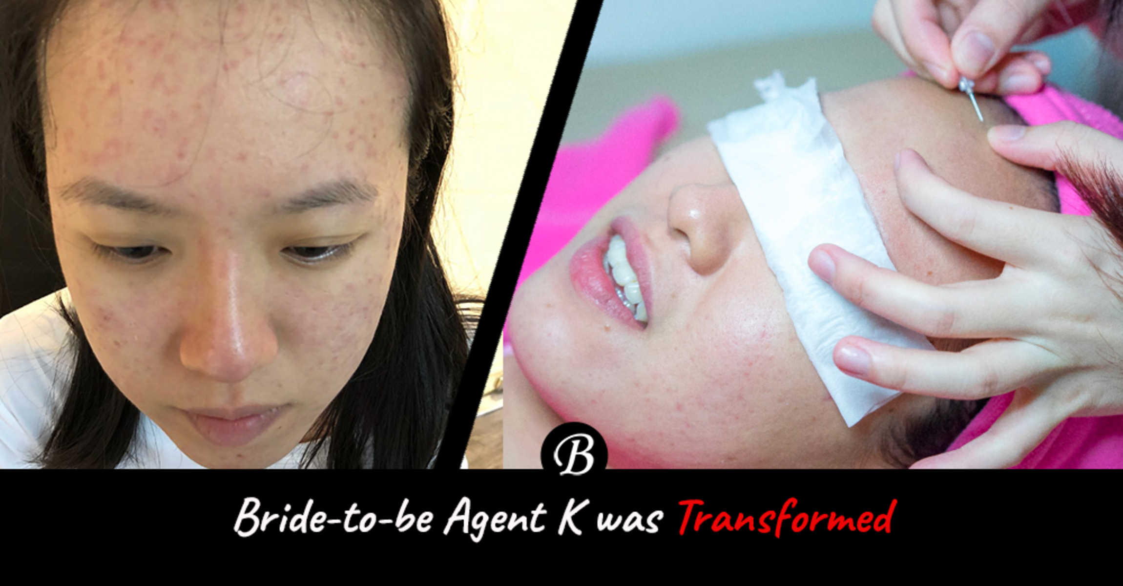 Bride-to-be Agent K Recovered from Acne After Going For a Facial Here.