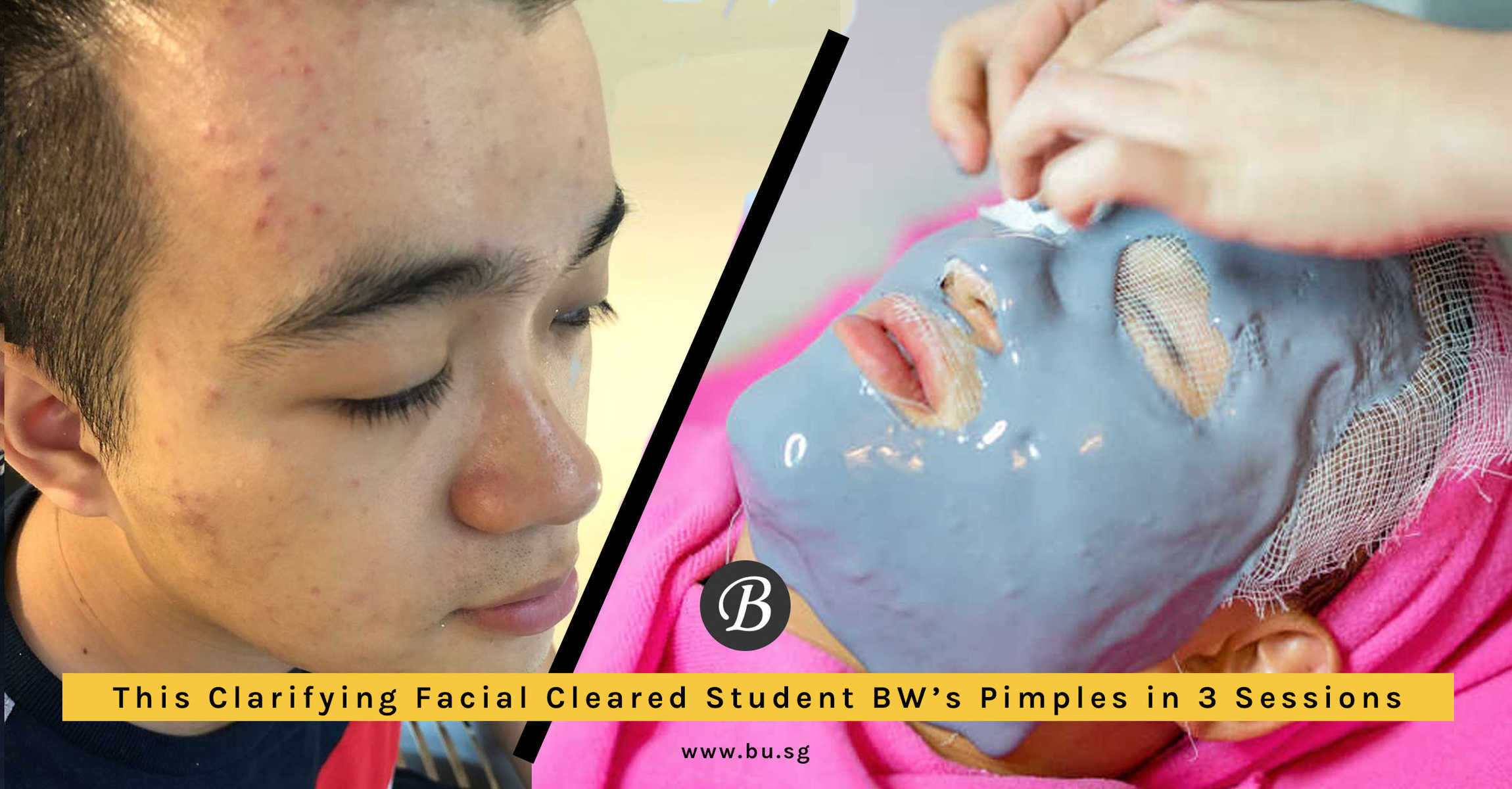 Student BW Sees an Improvement in Acne After Going for Clarifying Facial Here.