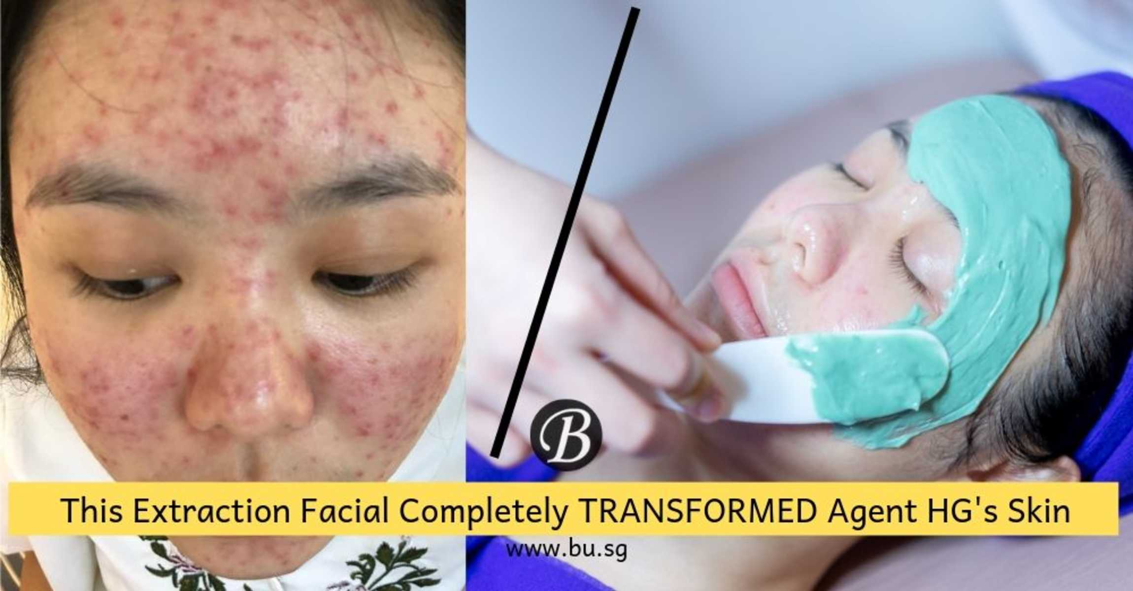 Yes, It's Possible to Recover from Severe Acne Outbreak! Agent HG Cleared Her Acne by Going to This Facial Salon