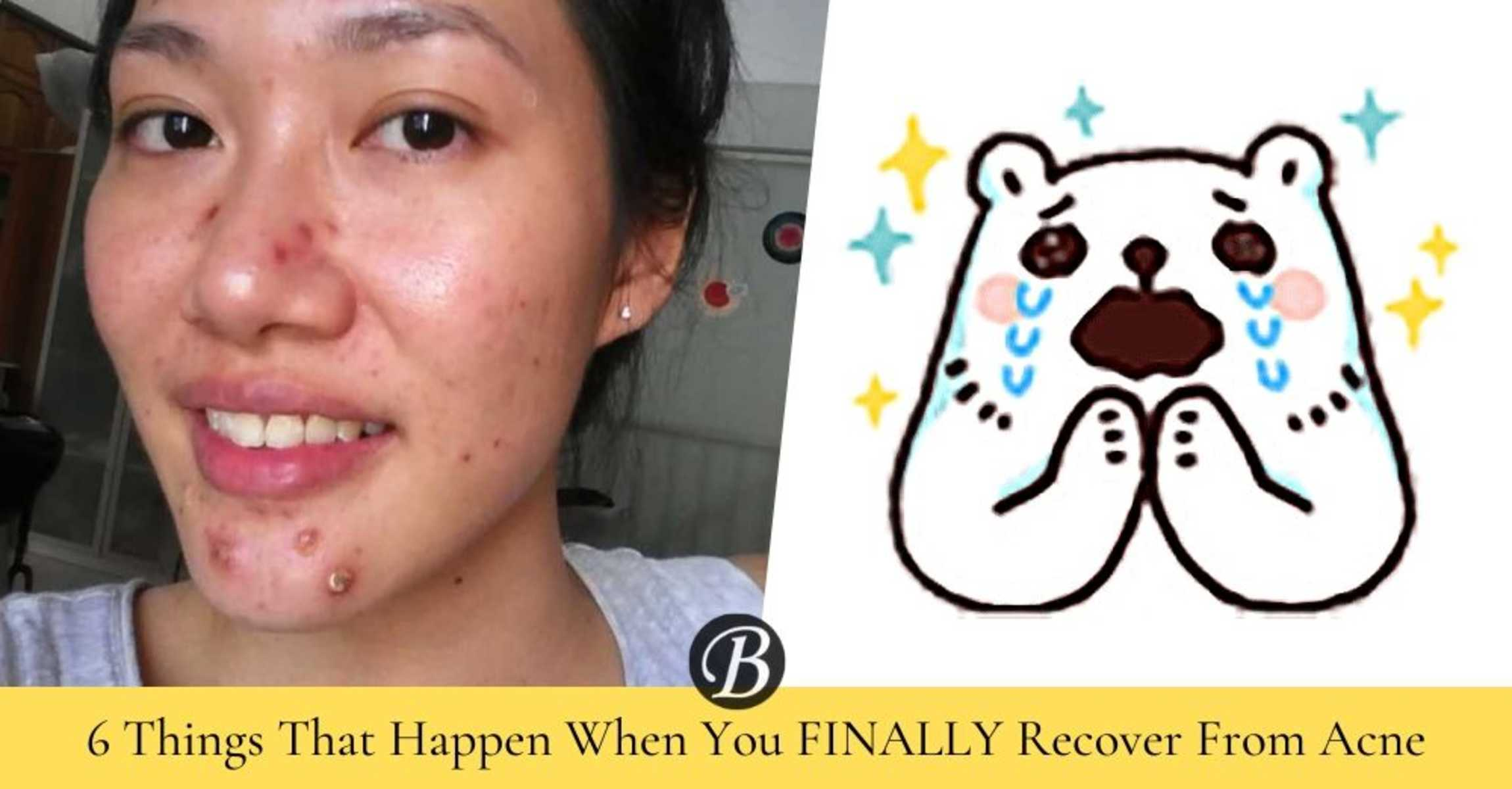 6 Things That Happen When You Recover From Acne