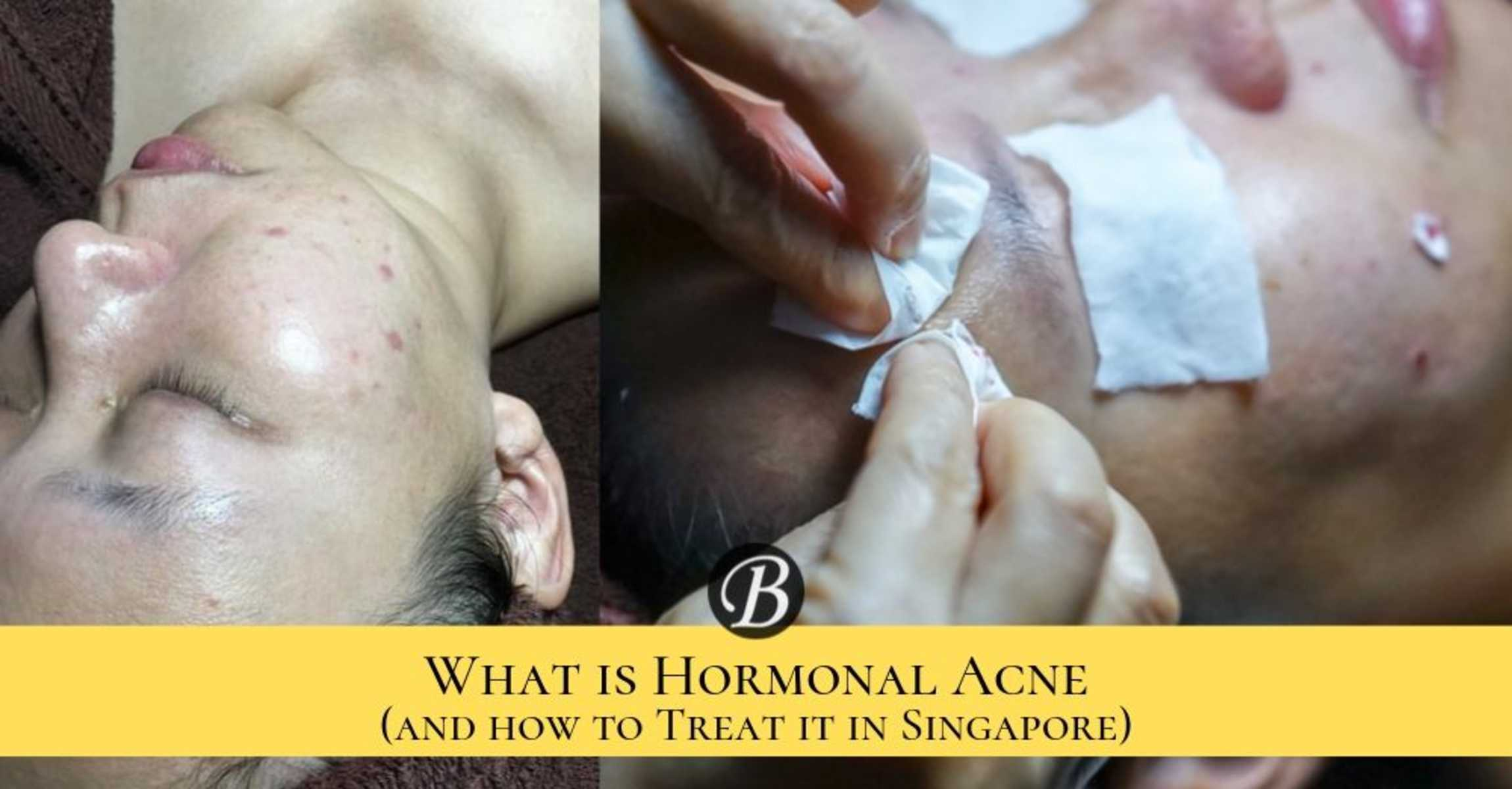 What is Hormonal Acne and 4 Ways to Combat Hormonal Acne in Singapore.