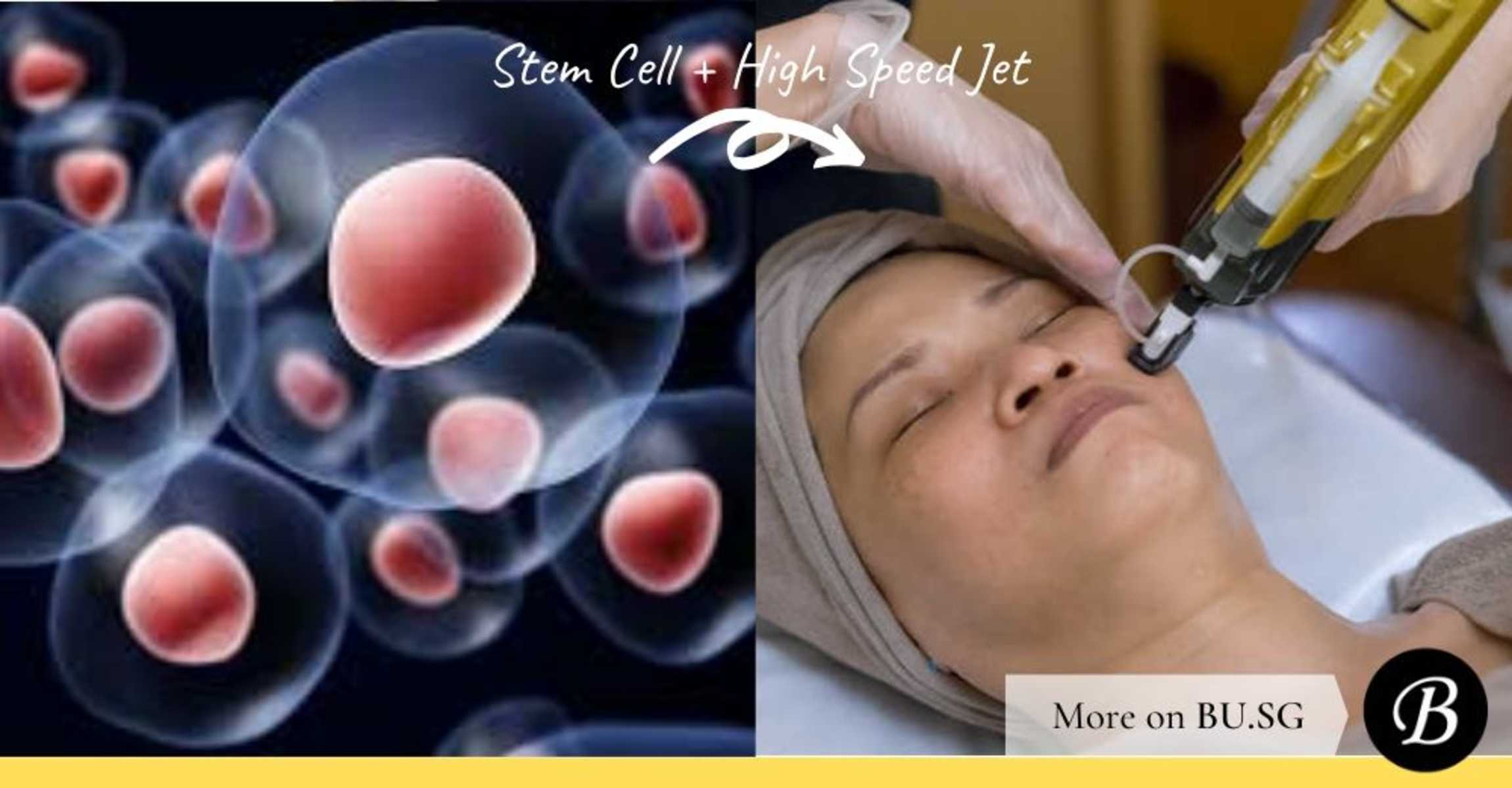 7 Reasons Why the Human Cultured Stem Cell Facial Produces Superhuman Results