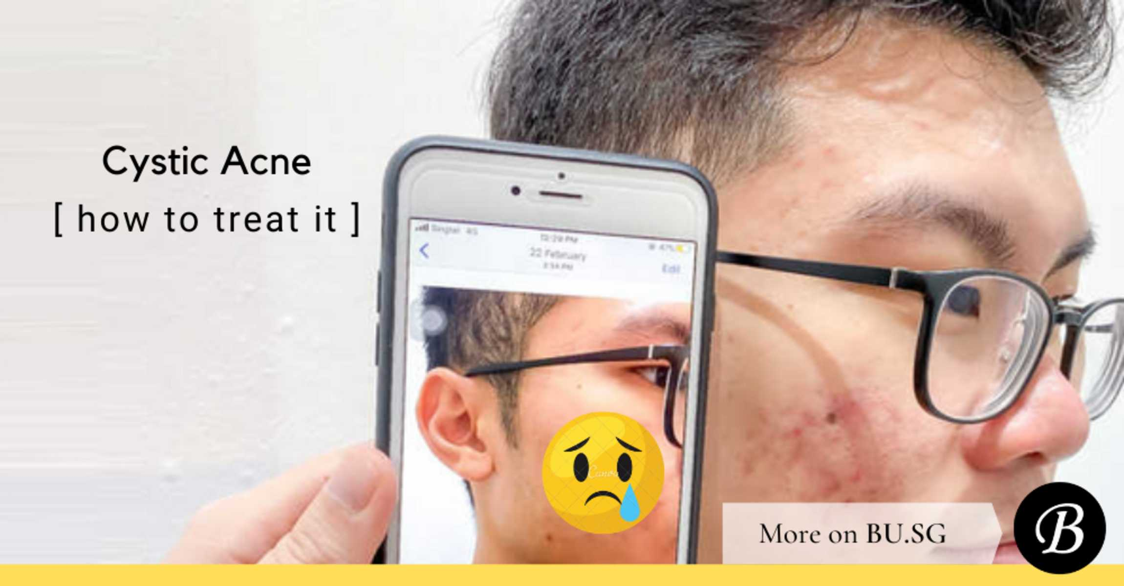 What is Cystic Acne and 5 Sure-Fire Ways to Treat Cystic Acne in Singapore