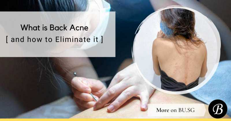 What is Back Acne and How Agent G Managed to Effectively Remove Them In 3 Months