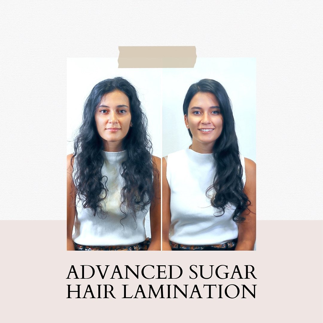 Advanced Sugar Lamination Before and After