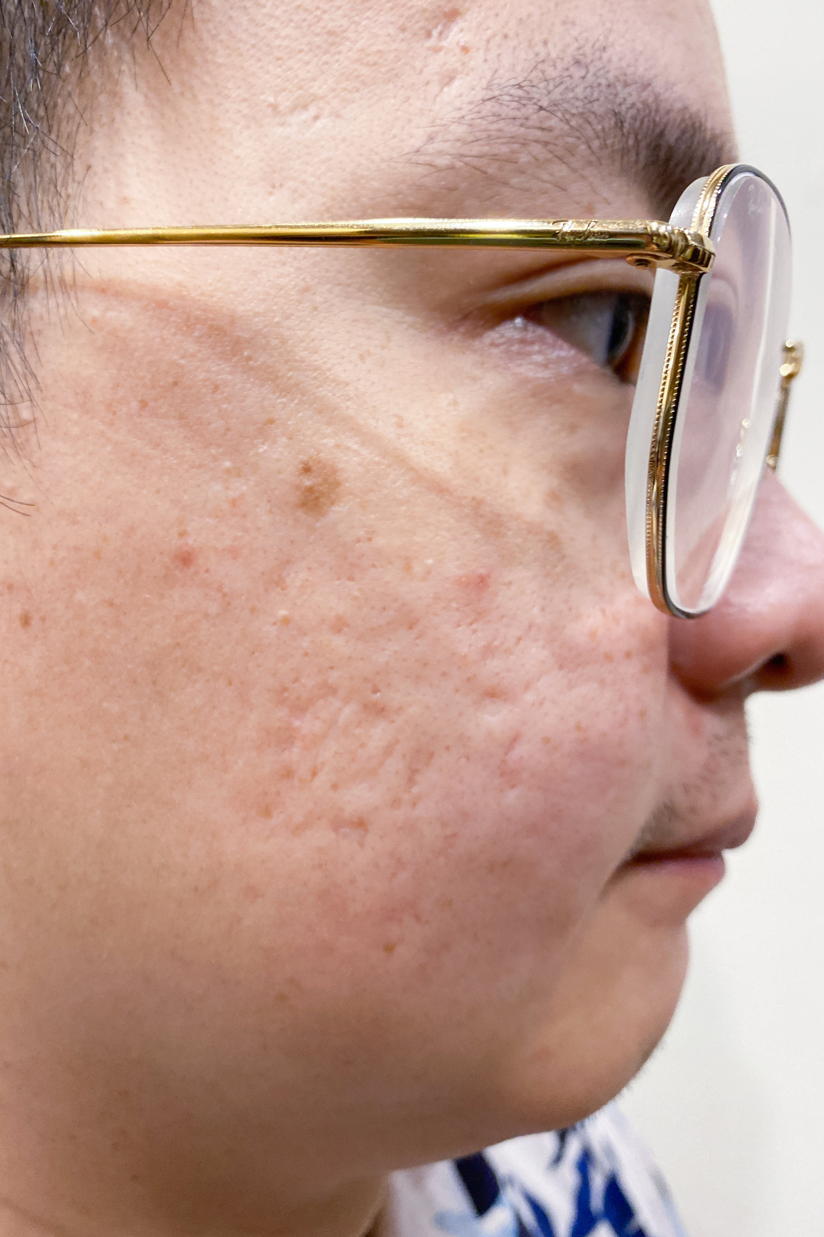 Dry, Rough and Acne Prone Treatment at Organics Beauty